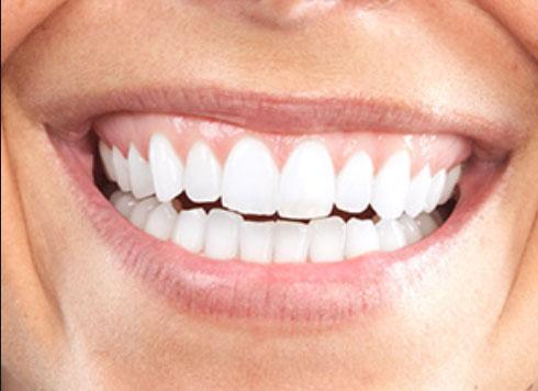 Om du är torr i munnen så finns det hjälp att få. Tugga CHEW PEER så får du mer saliv och en frisk naturlig andedräkt