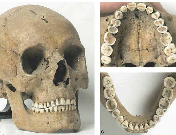 How to get even teeth is a modern problem. Skulls from the Stone Age show that their teeth sat in long neat rows.