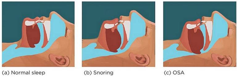 Chewing is not just about getting even teeth but about increasing the space in the airways.